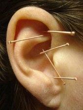 auricular-acupuncture