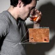 liver-disease-s4a-alcoholic-cirrhosis